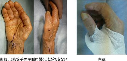 首 症 右手 欠損 頚部脊椎症(頚椎症)