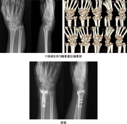 手首 骨折 手術 手首の骨折:橈骨遠位端骨折の治療法と手術をわかりやすく解説(一般...